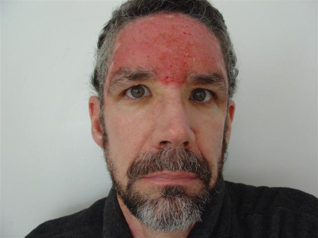 corticosteroid spray allergies