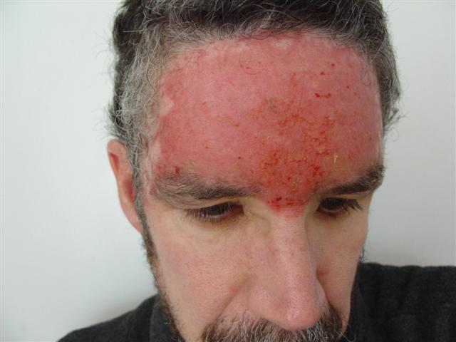 topical corticosteroid india